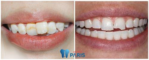 Răng cửa bị lung lay nhẹ - Nguyên nhân và hướng điều trị triệt để 2