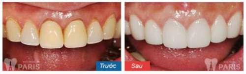 Giá chụp răng sứ bao nhiêu tiền là chuẩn tại Hà Nội và HCM 4