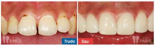 Giá chụp răng sứ bao nhiêu tiền là chuẩn tại Hà Nội và HCM 6