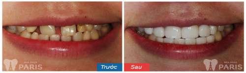 Giá chụp răng sứ bao nhiêu tiền là chuẩn tại Hà Nội và HCM 5
