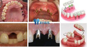 Trường hợp nào trồng răng Implant thì mới tốt nhất? [BS Tư Vấn] 1