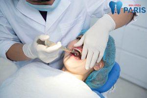 Trường hợp nào trồng răng Implant thì mới tốt nhất? [BS Tư Vấn] 3