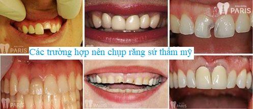 Chụp răng sứ thẩm mỹ là gì? 4 Điều cần lưu ý trước khi chụp răng là gì? 2