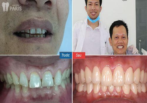 Chụp răng sứ thẩm mỹ là gì? 4 Điều cần lưu ý trước khi chụp răng là gì? 6