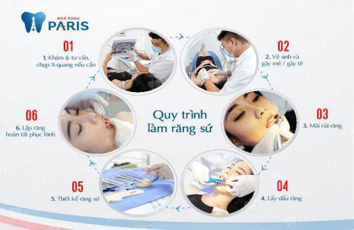 Chụp răng sứ thẩm mỹ là gì? 4 Điều cần lưu ý trước khi chụp răng là gì? 3