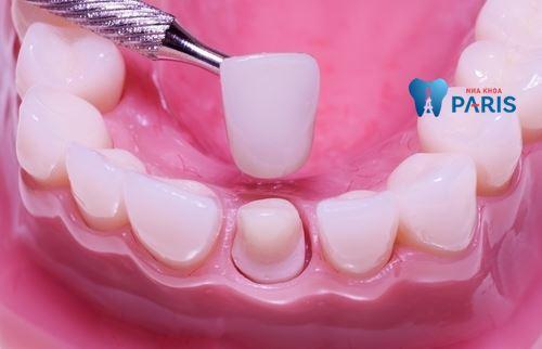 Làm mão răng sứ là gì? 5 Điều cần biết về làm mão răng sứ 1
