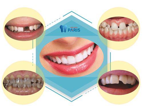 Làm mão răng sứ là gì? 5 Điều cần biết về làm mão răng sứ 3