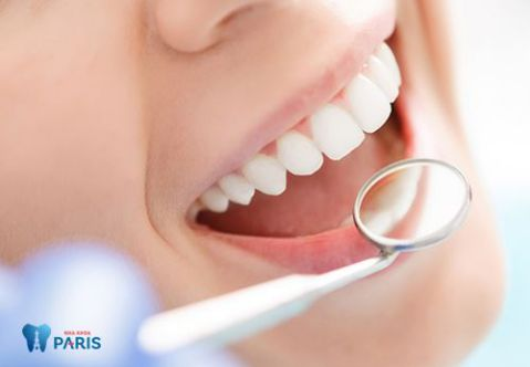Giá chụp răng sứ bao nhiêu tiền là chuẩn tại Hà Nội và HCM 1