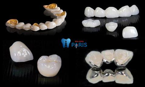 Giá chụp răng sứ bao nhiêu tiền là chuẩn tại Hà Nội và HCM 2