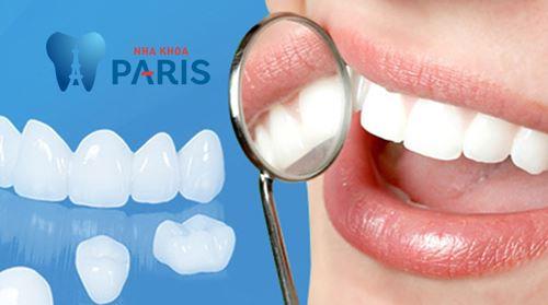 Răng sứ cercon - Giải pháp thay thế răng Bền & Đẹp vĩnh viễn 1