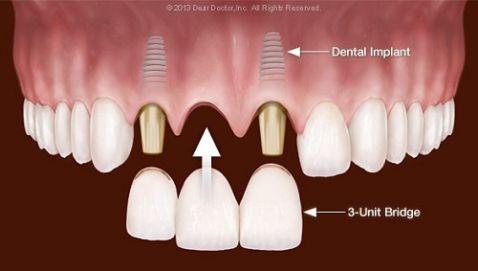 Làm cầu răng sứ, trồng lại răng mất Không đau - Tiết kiệm - Hiệu quả 2
