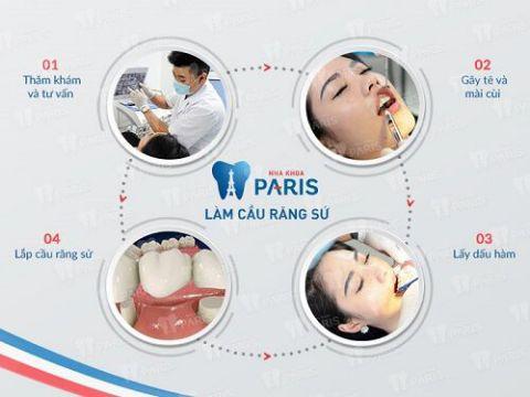 Làm cầu răng sứ, trồng lại răng mất Không đau - Tiết kiệm - Hiệu quả 4