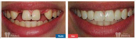 Làm cầu răng sứ, trồng lại răng mất Không đau - Tiết kiệm - Hiệu quả 6