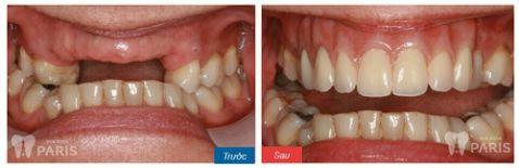 Làm cầu răng sứ, trồng lại răng mất Không đau - Tiết kiệm - Hiệu quả 7