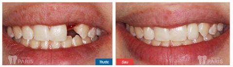 Làm cầu răng sứ, trồng lại răng mất Không đau - Tiết kiệm - Hiệu quả 9