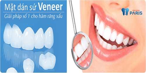 làm răng veneer sứ - phục hình răng hoàn hảo