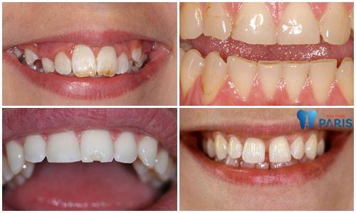 Làm răng veneer sứ