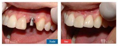Trải nghiệm trồng răng nanh giả công nghệ Implant hiện đại 2017 3