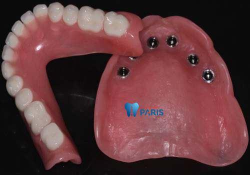 Bật mí về 3 loại răng giả tháo lắp tốt nhất bền đẹp như răng thật? 4