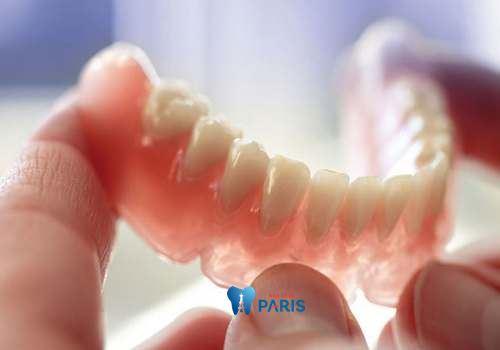 Bật mí về 3 loại răng giả tháo lắp tốt nhất bền đẹp như răng thật? 2