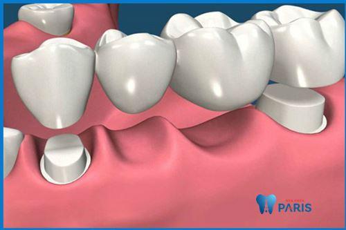 Trồng 3 răng liên tiếp nên áp dụng thực hiện theo phương pháp nào? 2