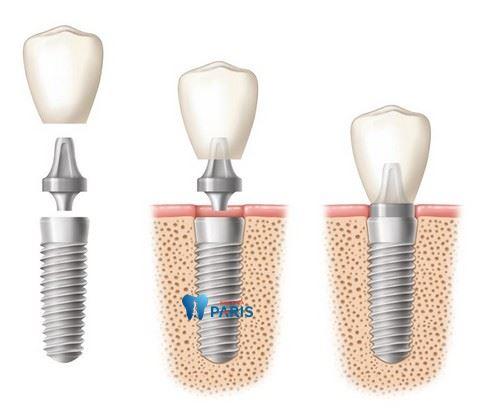 Thời gian lành thương khi cấy răng Implant mất bao lâu là hợp lý nhất? 1