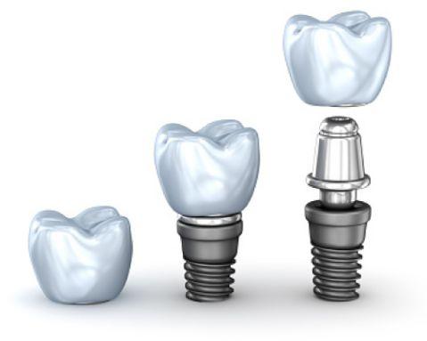 Bật mí 8 lưu ý khi cấy ghép implant có thể bạn chưa biết? 1