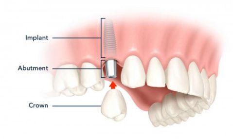 Quy trình trồng răng implant chuẩn là gì? 1