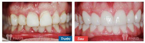 Làm răng sứ có đau không khi dùng CN bọc răng sứ Nano Shining 5S? 5