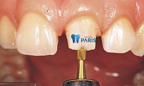 Làm răng sứ có đau không khi dùng CN bọc răng sứ Nano Shining 5S? 2