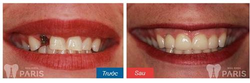 Quy trình trồng răng Implant 4