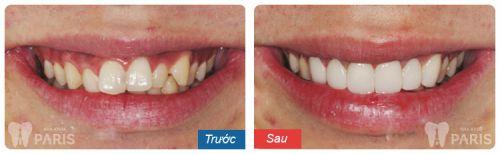 Trồng răng sứ titan - Giải pháp trồng lại răng cố định hiệu quả tiết kiệm 7