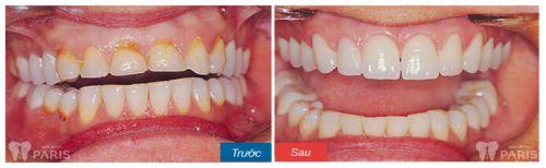 khách hàng trồng răng sứ titan 4