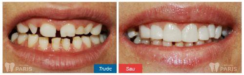 khách hàng trồng răng sứ titan 2