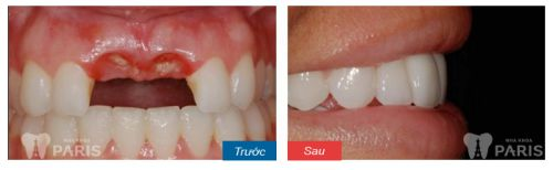 Trồng răng sứ titan - Giải pháp trồng lại răng cố định hiệu quả tiết kiệm 3