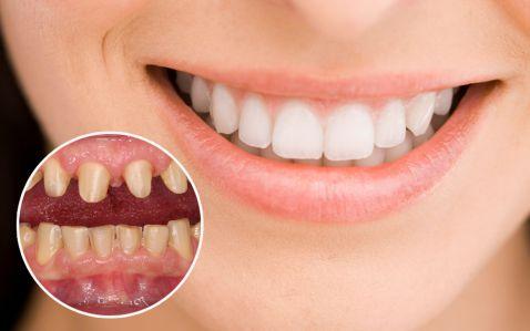 7 Điều cần biết trước khi trồng răng sứ không kim loại là gì? 1