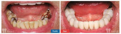 Trồng răng sứ không kim loại - Phục hình răng mất bền chắc Vĩnh Viễn 5
