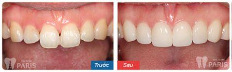 Trồng răng sứ không kim loại - Phục hình răng mất bền chắc Vĩnh Viễn 7