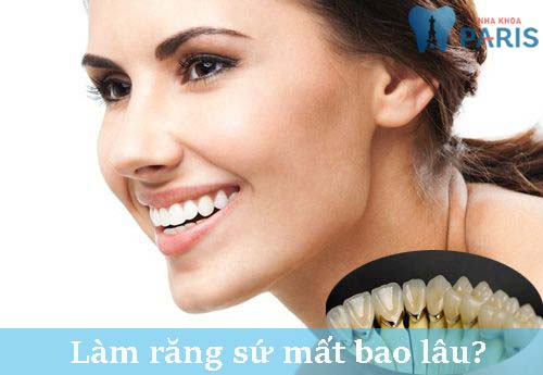 Thời gian làm răng sứ mất bao lâu là nhanh nhất? [BS Tư Vấn] 1