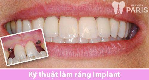 Kỹ thuật làm răng Implant 1