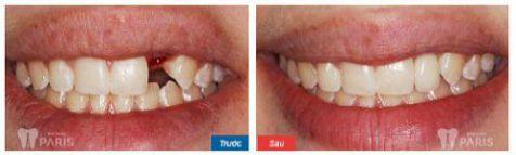 """Làm răng giả cố định loại nào """"Bền & Đẹp"""" VĨNH VIỄN? 5"""