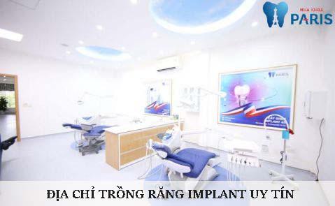 Địa chỉ trồng răng implant ở đâu TỐT & UY TÍN nhất tại Hà Nội? 1