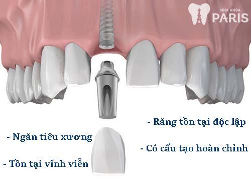 Giải đáp thắc mắc: Cấy ghép răng implant có tốt không 1