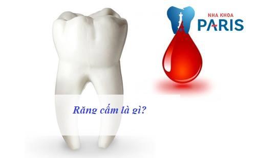 Răng cấm là gì