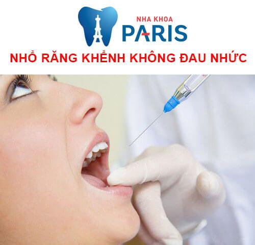 nhổ răng khểnh có nguy hiểm không