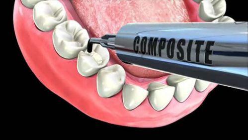 Răng khểnh có hại không khi xét trên các góc độ khác nhau? 2