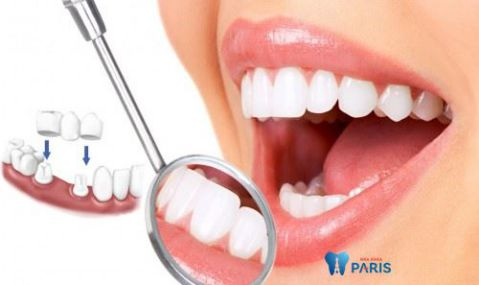 Răng khểnh có hại không khi xét trên các góc độ khác nhau? 3