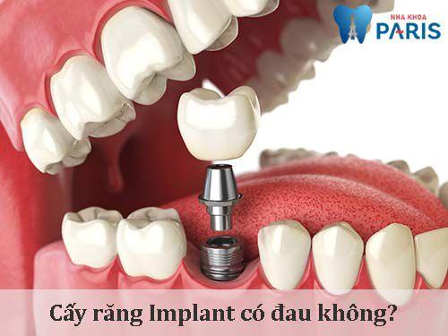 Cấy răng implant có đau không, có ảnh hưởng gì không? 1