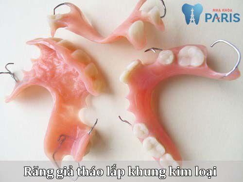 Hé lộ ưu & nhược điểm của 3 loại răng giả tháo lắp mà ÍT AI BIẾT 2