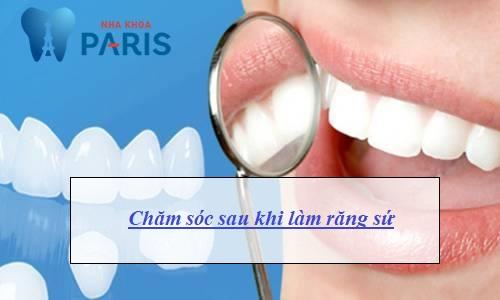 sau khi làm răng sứ cần lưu ý gì